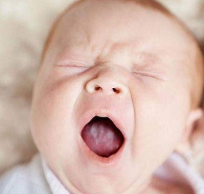 Мозоль на губе у новорожденного вверху: симптомы у грудного ребенка, лечение волдыря от сосания