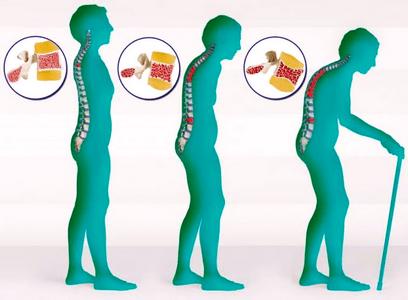 Могут ли болеть суставы при климаксе: причины боли в суставах, профилактика и лечение симптомов + что делать, если болит спина