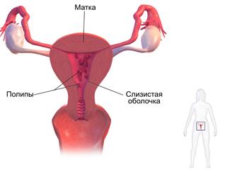 Гистерорезектоскопия полипа эндометрия: что это такое, матки, послеоперационный период, цервикального канала, выделения, удаление, месячные после, беременность, восстановление, отзывы