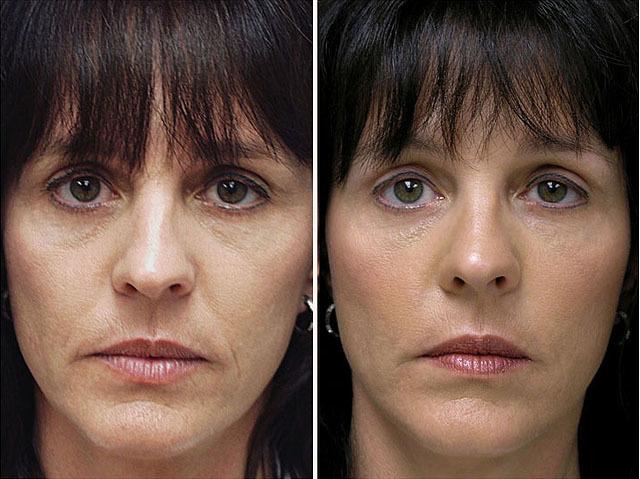 Биореволюметрия - инновационное омоложение кожи: что это такое и отзывы
