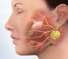 Воспаление неба во рту: чем лечить если воспалилось за передними зубами, лечение