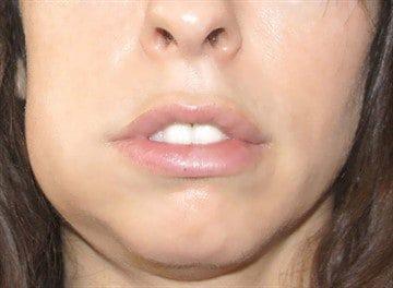 Периостит нижней челюсти – симптомы, история болезни, диагностика, лечение, код по мкб-10