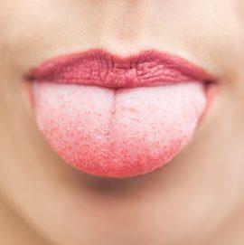 Волдыри на языке у ребенка: что это, причины появления, методы лечения, первая помощь, профилактика