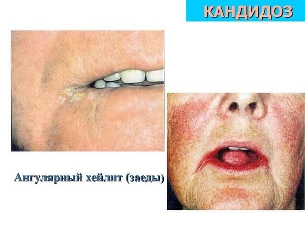 Покраснение вокруг губ и жжение. Как лечить хейлит: симптомы заболевания на губах с фото, причины воспаления и подбор препаратов для детей и взрослых