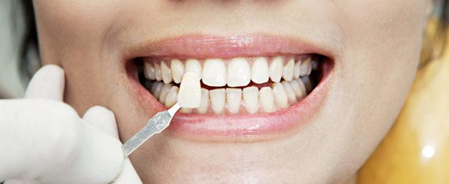 Какие коронки на зубы лучше ставить: виды, сравнение, плюсы и минусы
