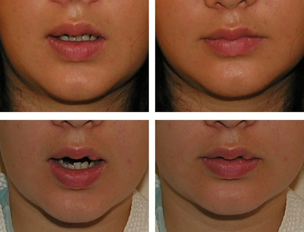 Рубцы на лице: пластика и коррекция, варианты проведения (лазер, контурная пластика), как убрать с наименьшими последствиями