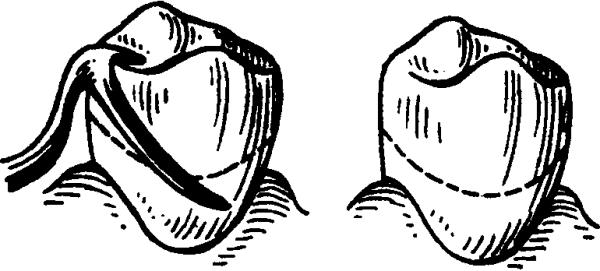 Цели применения и разновидности кламмеров, используемых в стоматологии. Классификация и особенности кламмеров