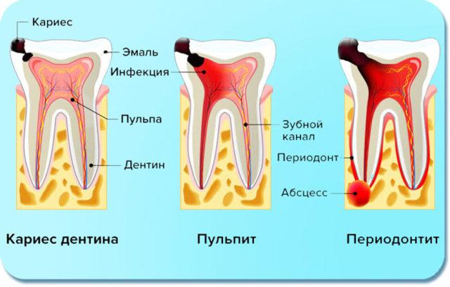 Сколько каналов находится в нижних и верхних зубах, от чего зависит их количество