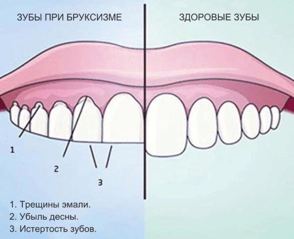 Почему во сне скрипят зубами: причины и лечение бруксизма у взрослых и детей, проблема зубного скрежета ночью