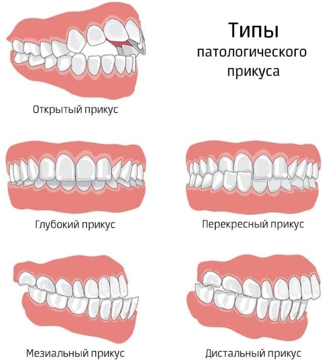 В чём разница между стоматологом ортопедом и ортодонтом: что общего между специалистами, в чём отличие ортодонта от ортопеда