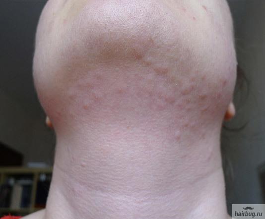 Электроэпиляция лица: виды, фото до и после, уход за кожей после процедуры, отзывы