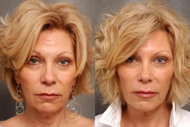 Лифтинг губ: как происходит нитевая подтяжка уголков и контура, верхней губы, фото до и после постановки мезонитей, отзывы косметологов и пациентов