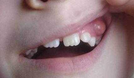 Киста на десне зуба – симптомы, последствия и лечение кисты на десне народными средствами, удаление