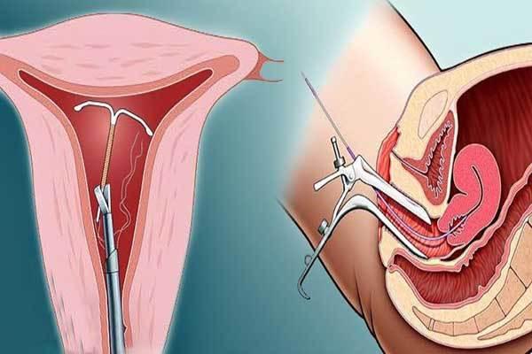 Можно ли забеременеть со спиралью: причины, вероятность и признаки беременности при вмс
