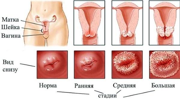 Наботовы кисты шейки матки. Что это такое, причины появления, симптомы, когда нужно удалять, как лечить народными средствами. Фото