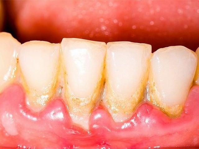 Чувствительность зубов после отбеливания, удаления камней и чистки ультразвуком: что делать, чтобы не болели и не воспалялись десны