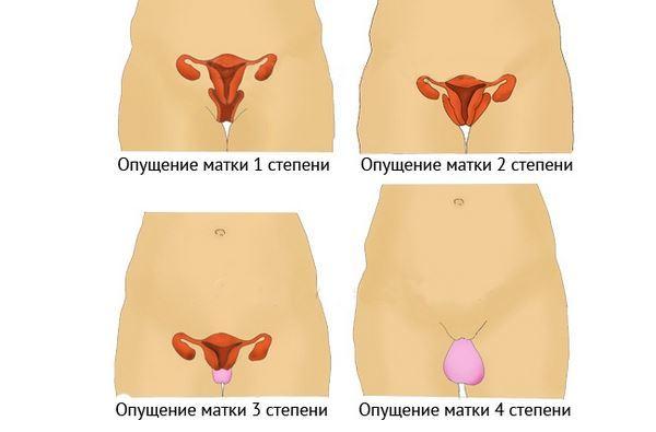 Как определить опущение матки в домашних условиях: можно ли определить и распознать самостоятельно и видно ли патологию на узи