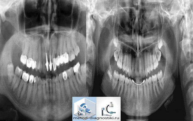 Можно ли делать мрт, если в зубе штифт: почему нельзя проводить диагностику