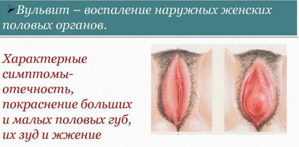 Рецепты применения крапивы при маточных кровотечениях. Лечение крапивой - кроветворение и кровотечения