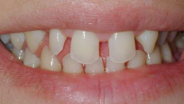 Аномалии размера зубов – микродентия, макродентия, лечение