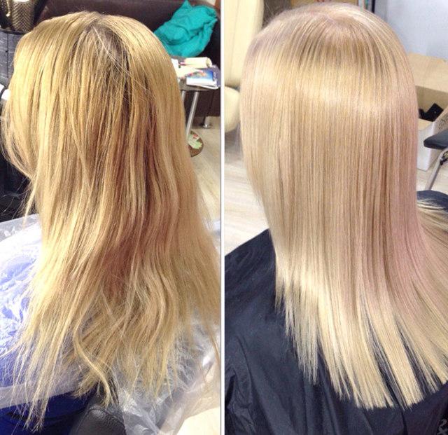Лифтинг для волос: что это такое, плазмолифтинг и другие виды, последствия, отзывы