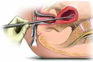 Восстановление организма после замершей беременности: что делать, если болит внизу живота, груди после чистки, методы лечения