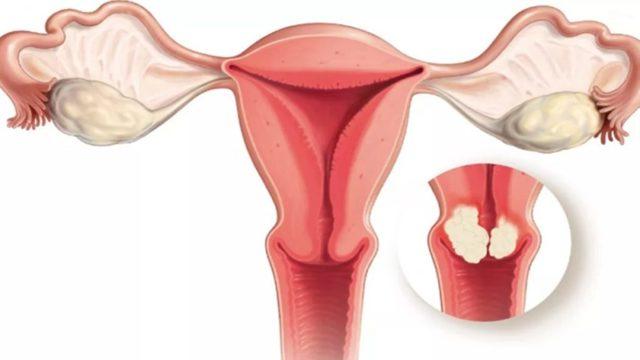 Можно ли забеременеть при эрозии шейки матки: стоит ли прижигать, влияет ли на зачатие