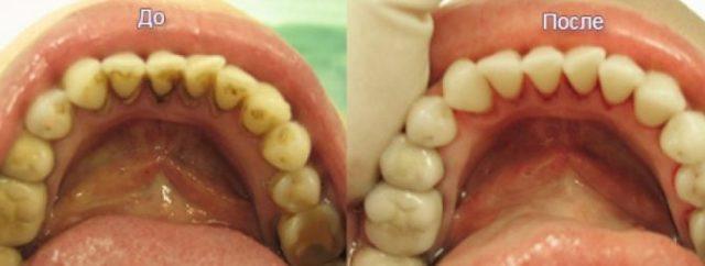 Санация полости рта и зубов: что такое санирование ротовой полости и зачем она нужна