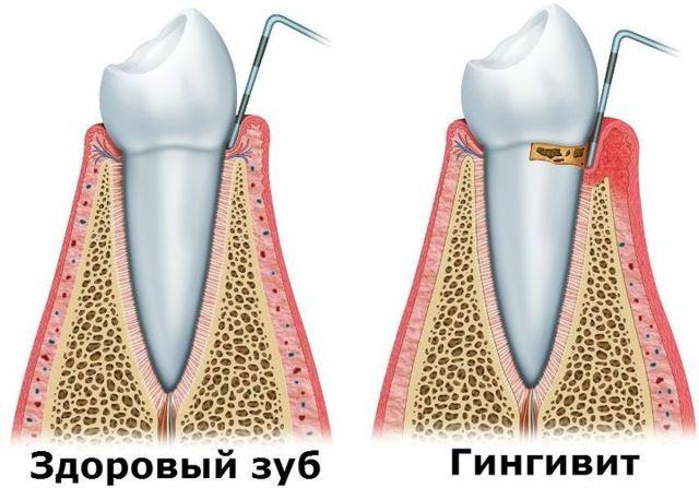 Болит зуб без нерва: могут ли болеть мертвые зубы, что делать
