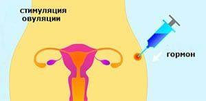 Стимуляция овуляции после лапароскопии: при спкя, при отсутствии фертильности, как происходит
