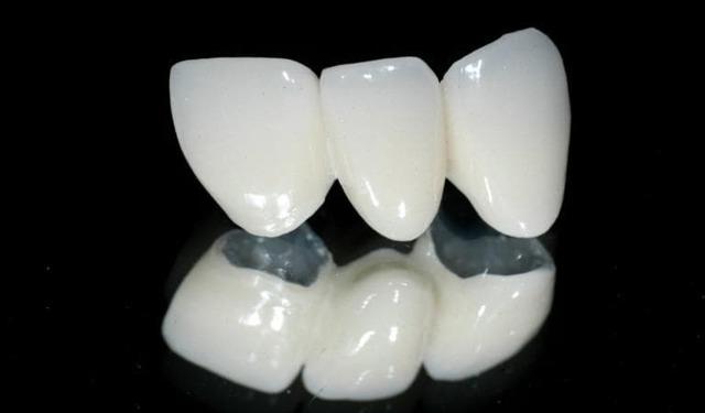 Зубной мост или имплант что лучше ставить на коренные и передние зубы?
