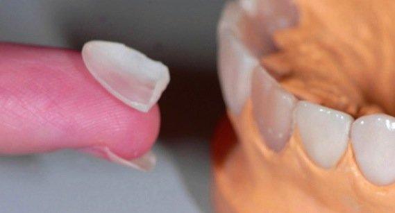Керамические виниры – срок службы, плюсы и минусы виниров из керамики