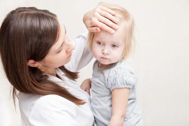 Ветрянка во рту: симптомы, причины, как и чем лечить, питание, осложнения и последствия, особенности у взрослых и детей