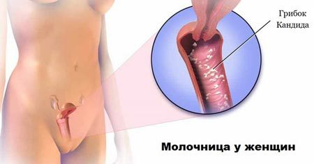 Молочница: у женщин и мужчин, причины, как лечить кандидоз, эффективные средства