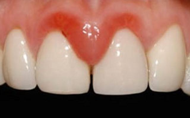 Удаление корня разрушенного и гнилого зуба: больно ли удалять, как удаляют если остался только корень