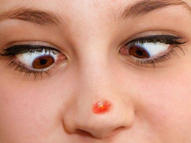 Как убрать большой прыщ - в домашних условиях, за ночь, подкожный, быстро, красный на носу, на щеке