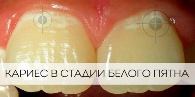 Средства от зубной боли быстрые и эффективные