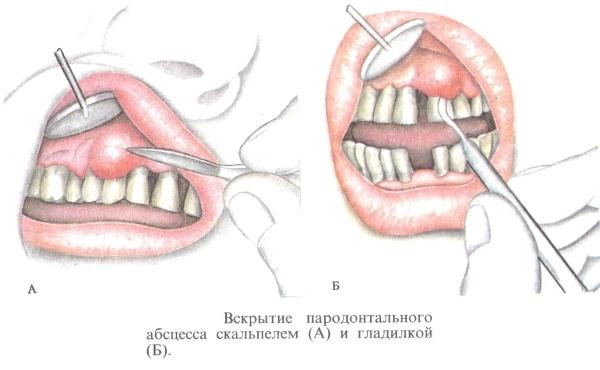 Свищ на десне: причины, лечение зубного свища во рту после удаления зуба, последствия, фото