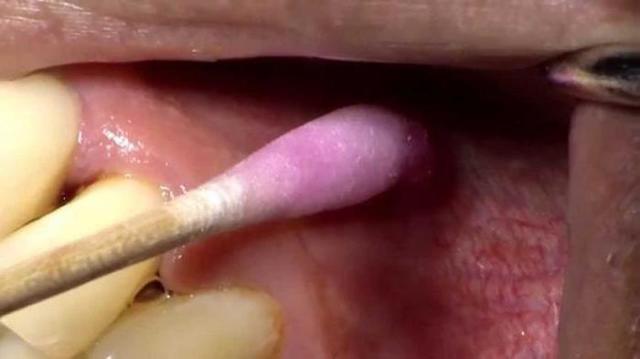 Больно ли удалять зуб с уколом анестезии: как успокоиться и настроиться перед удалением?