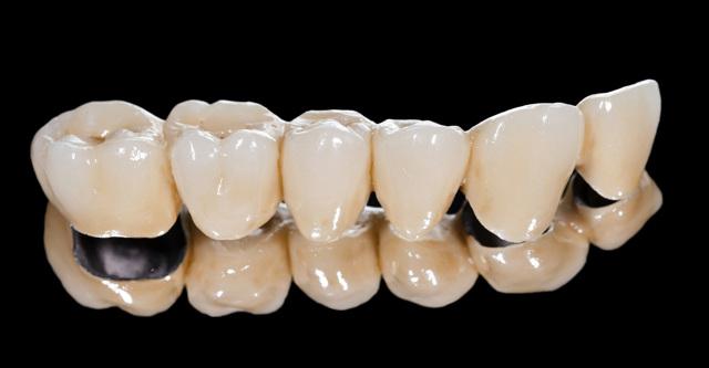 Коронки на жевательные зубы: основные виды и их особенности, какие лучше поставить