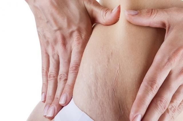 Массаж от растяжек: как можно убрать на животе, груди, при беременности, вакуумный и другие варианты