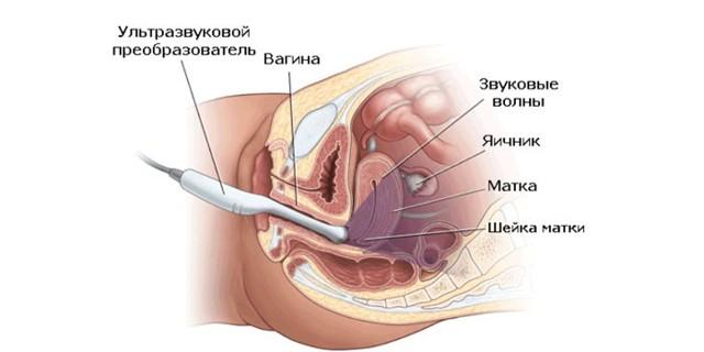 Эндометриоз — что это такое доступным языком, симптомы и лечение народными средствами