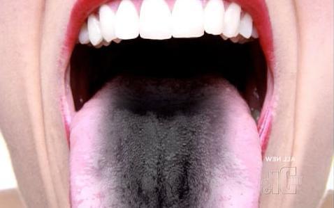 Черный язык у человека: взрослого причины, симптомы какого заболевания, что это значит, почему почернел язык