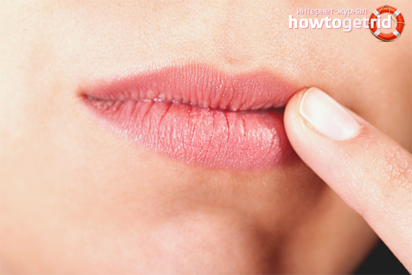 Воспаление на губе: что такое хейлит и как лечить красную кайму губ препаратами и народными средствами в домашних условиях?