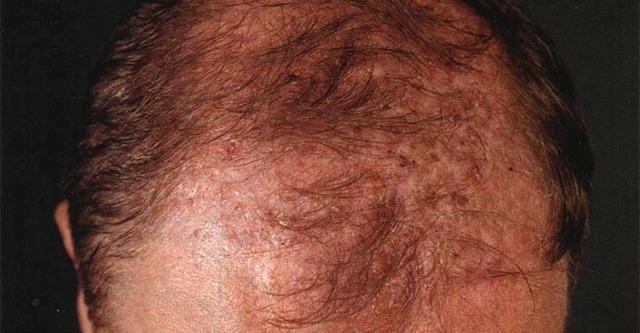 Как определить стадию поредения (облысения) волос?