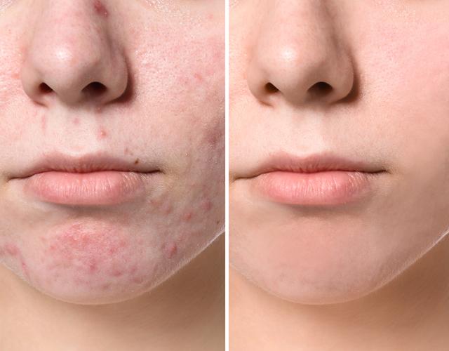 Методы лечения пятен и рубцов постакне и результаты терапии на фото до и после, лазерное удаление рубцов после акне