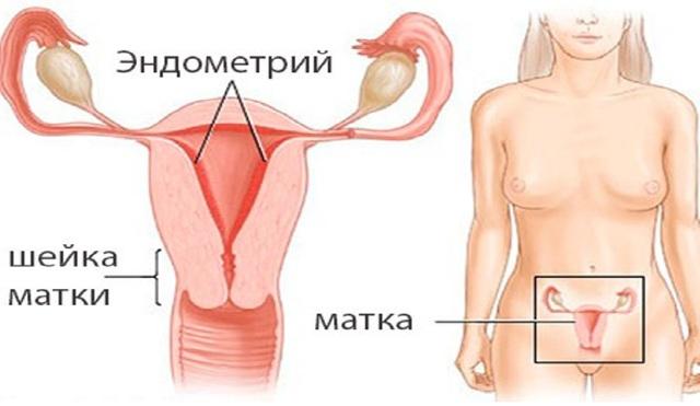 Аденокарцинома матки: что это такое и сколько проживет человек