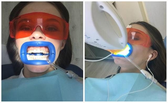 Отбеливание зубов после снятия брекетов: разрешенные процедуры, способы отбелить в домашних условиях