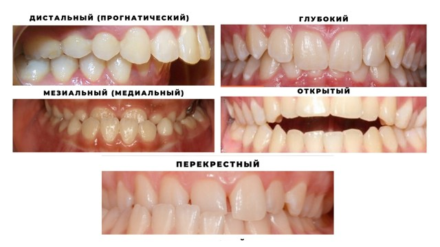 Врач стоматолог ортодонт: кто это и что лечит, что такое ортодонтия