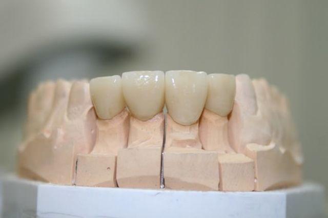 Гарантия на протезирование зубов по закону - гарантийные сроки на коронки и съемные протезы